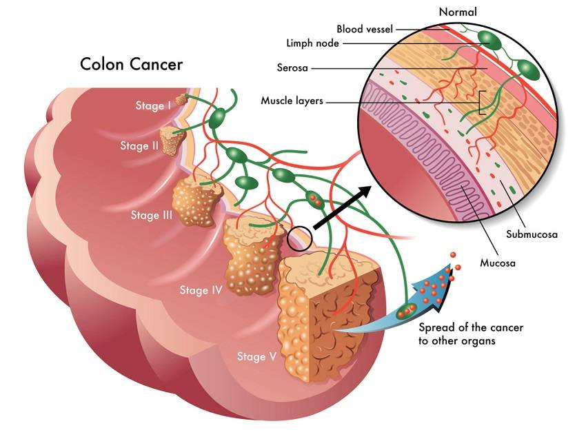 colon cancer Noting a sharp rise in colorectal cancer among younger people, the american  cancer society now suggests that healthy adults get their first.