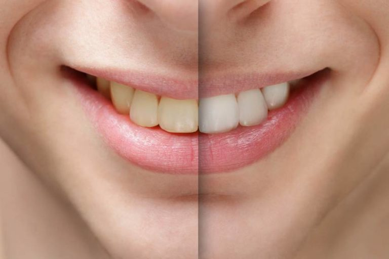 How to Whiten Your Teeth at Home: 10 Natural Remedies for Sparkling Teeth