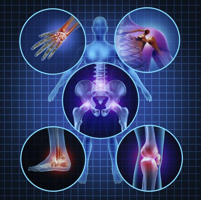 Get Relief from Achy Joints