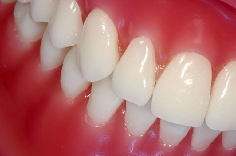 Read more about the article Save Your Gums: 6 Natural Ways to Fight Gum Diseases
