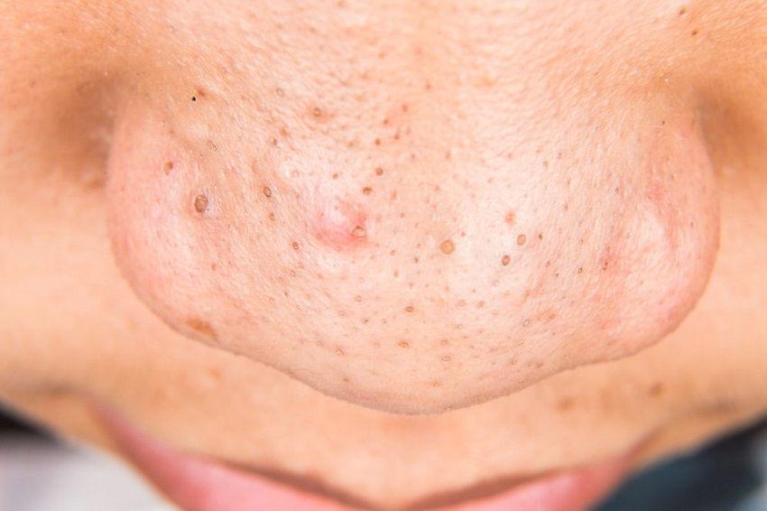 Photos de pores faciaux profonds