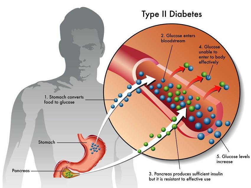 the clinical description of the diabetes mellitus type 1 disease Clinical presentation of type 2 diabetes mellitus risk factors the risk factors for the development of both prediabetes and type 2 diabetes mellitus (t2dm) are as follows: 1.