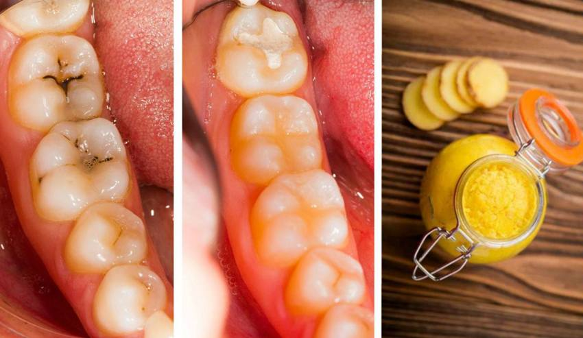 How To Know If You Have Cavities