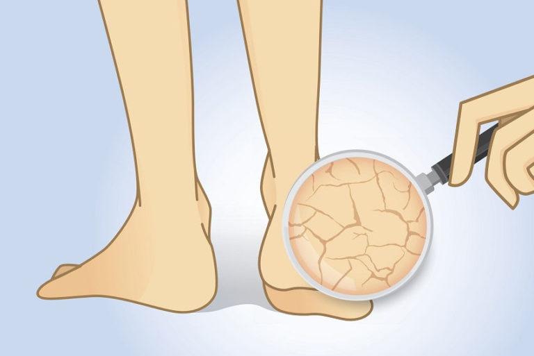 Get Rid of Dry Cracked Feet and Calluses Using Lemon Peel