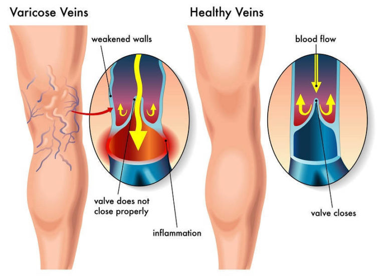 How to Get Rid of Varicose Veins with These Simple Natural Remedies