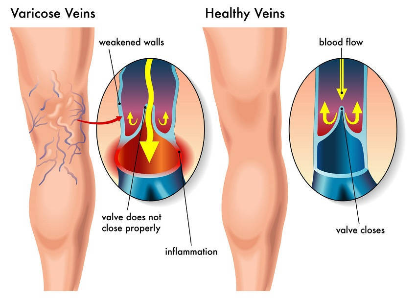 an introduction to the issue of varicose veins Introduction of outpatient visitors how to make  what treatment approaches  are there for varicose vein of legs  varicose vein itself doesn't cause harm, it is  the stagnation of blue pipes that triggers symptoms such as lassitude and edema.