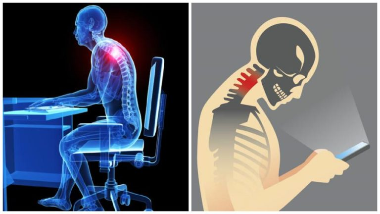 Read more about the article How Sedentary Lifestyle Is Giving You a Hunchback and What to Do about It