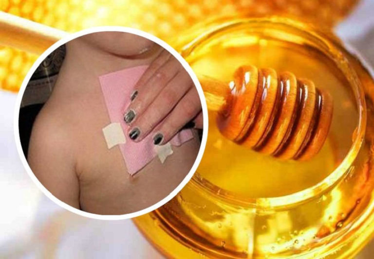 How to Make Homemade Honey Wraps to Get Rid of Cough and Mucus