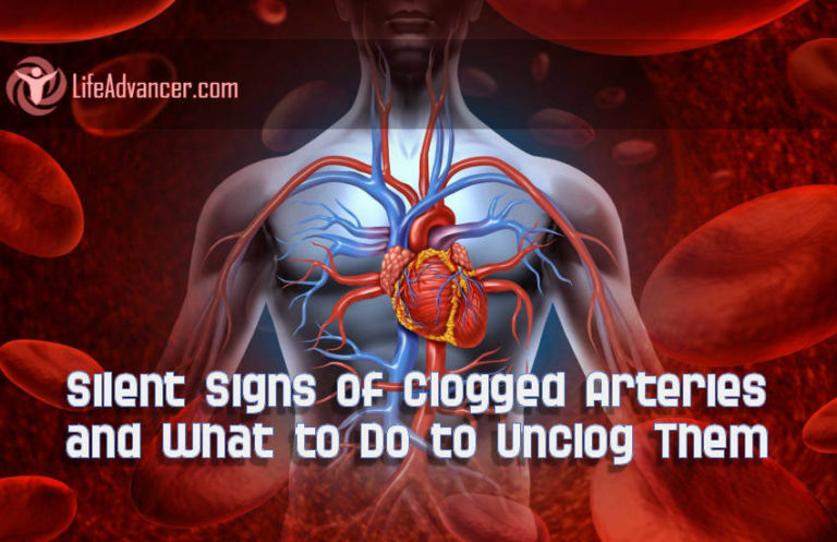 Read more about the article 4 Silent Signs of Clogged Arteries and What to Do to Unclog Them