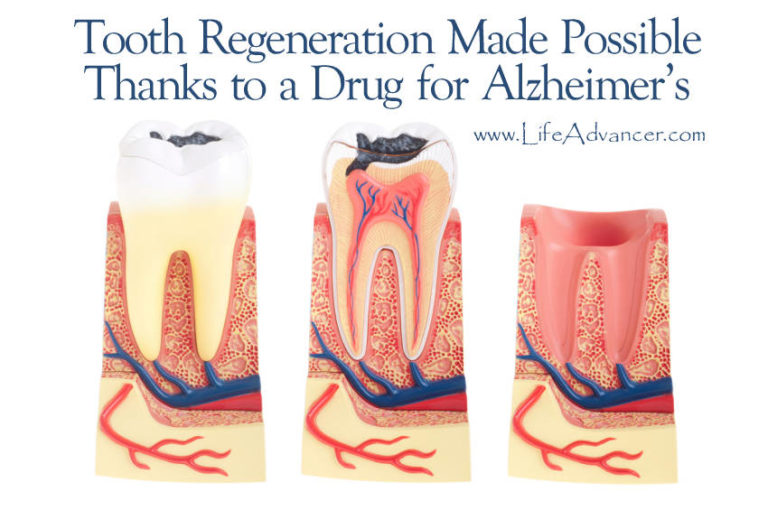 Tooth Regeneration Made Possible Thanks to a Drug for Alzheimer's
