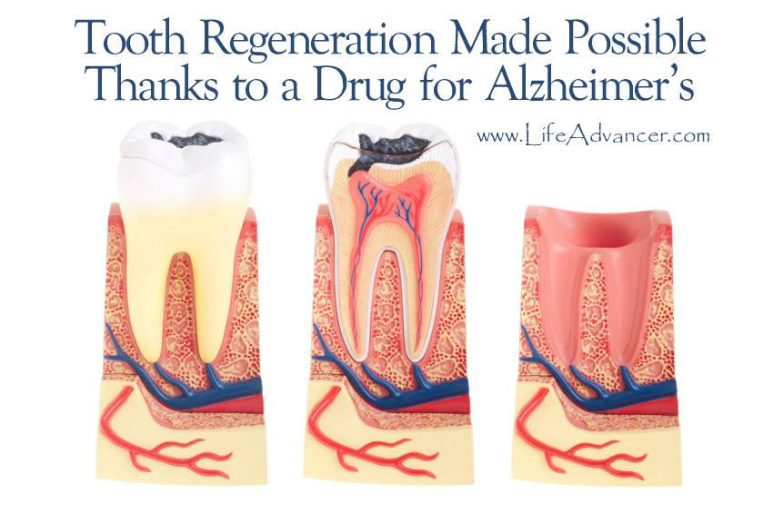 Tooth Regeneration Possible Drug Alzheimer