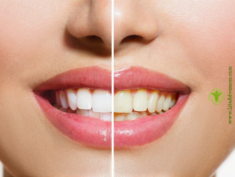 Best DIY Teeth Whitening Techniques to Give You a Perfect Smile