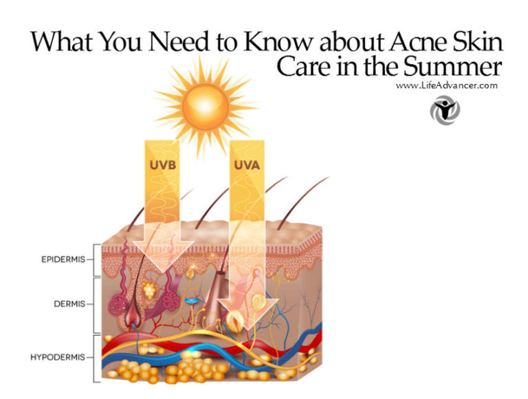 Read more about the article What You Need to Know about Acne Skin Care in the Summer