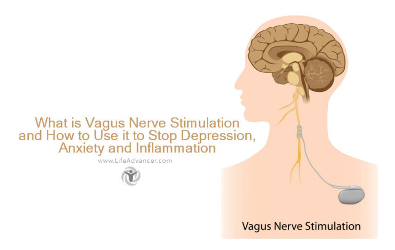 What Is Vagus Nerve Stimulation and How to Use It to Stop Depression, Anxiety and Inflammation