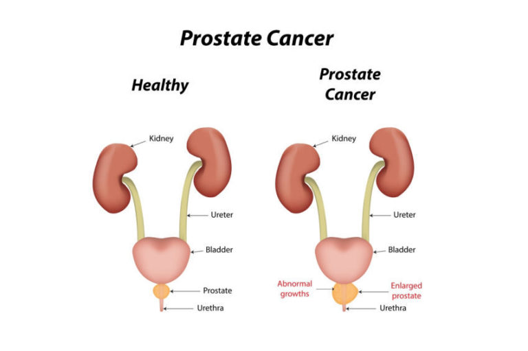 Prostate Cancer Rates Are Lower in Asian Men and Here's Why