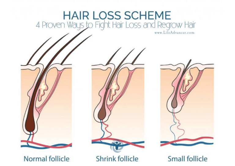 4 Proven Ways to Fight Hair Loss and Regrow Hair