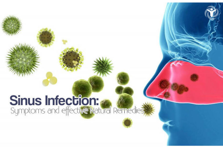 Sinus Infection: Symptoms and Effective Natural Remedies