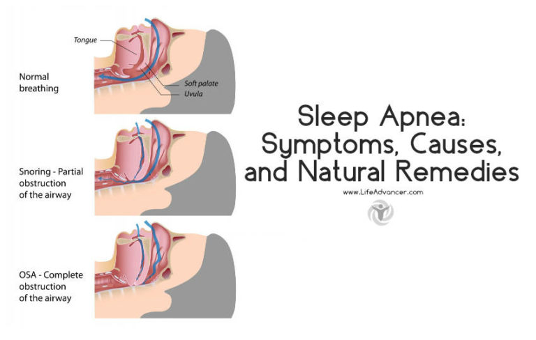 Sleep Apnea: Symptoms, Causes, and Natural Remedies