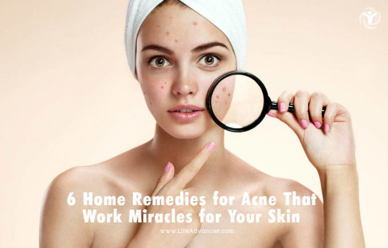6 Home Remedies for Acne That Work Miracles for Your Skin