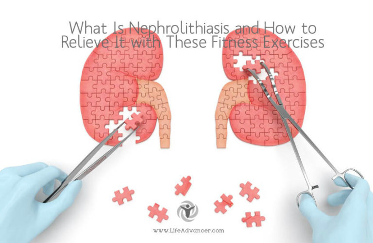 What Is Nephrolithiasis and How to Relieve It with 6 Activities