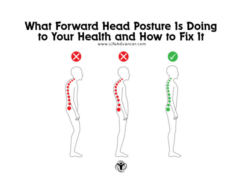 Read more about the article What Forward Head Posture Is Doing to Your Health and How to Fix It