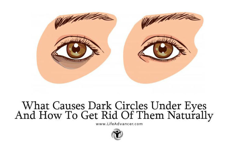 What Causes Dark Circles Under Eyes & How to Get Rid of Them