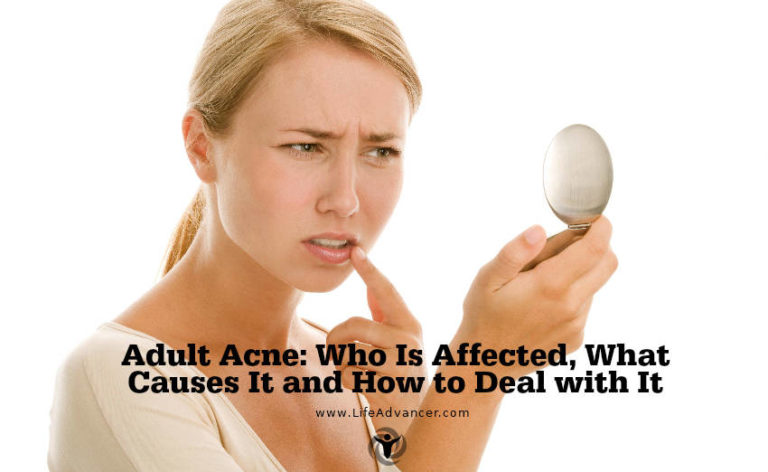 Adult Acne: Who Is Affected, What Causes It and How to Deal with It