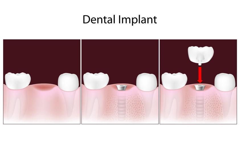 Dental Implants 3 steps