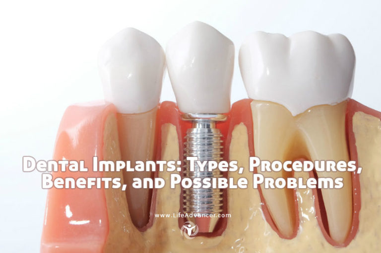Dental Implants: Types, Procedures, Benefits, and Possible Problems