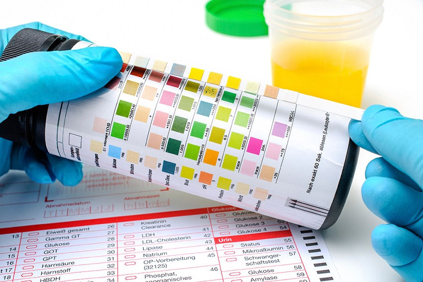 Managing Blood In Urine