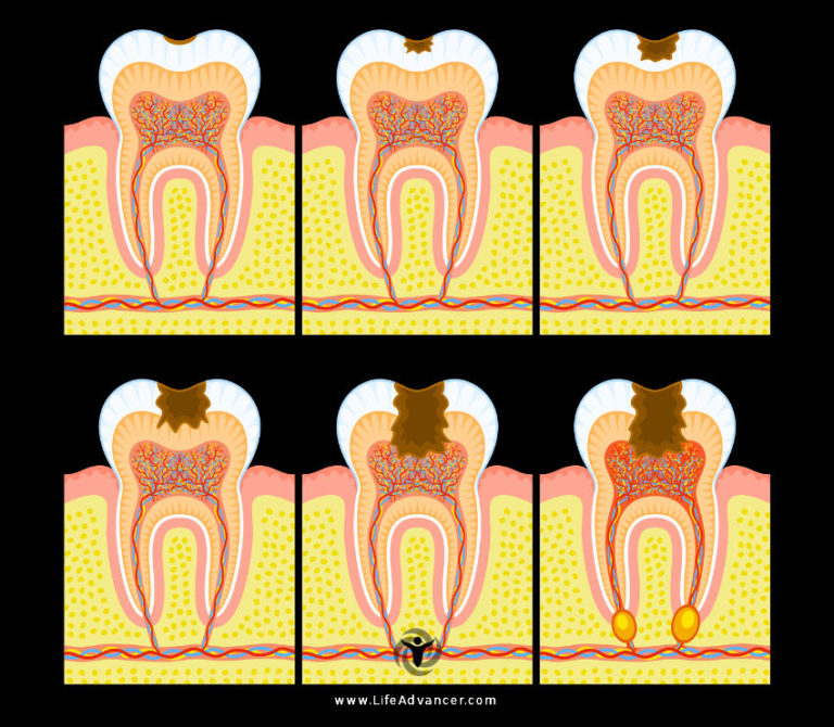 Tooth Infection: Symptoms, Causes and Natural Relief Remedies