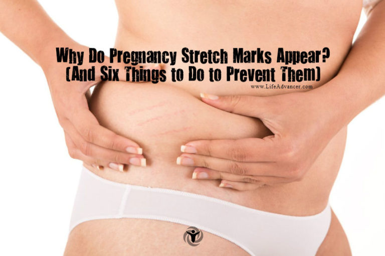 Why Do Pregnancy Stretch Marks Appear and How to Prevent Them?