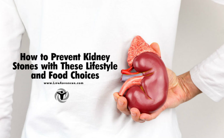 How to Prevent Kidney Stones with These Lifestyle and Food Choices
