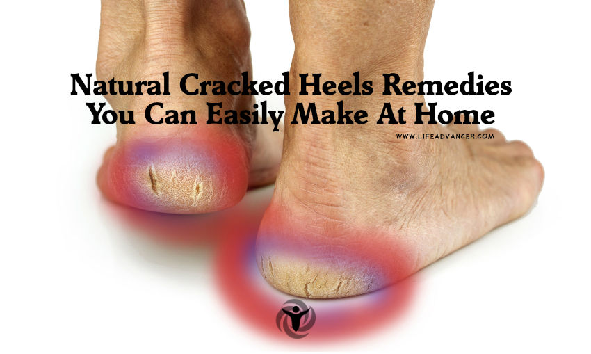 Natural Cracked Heels Remedies
