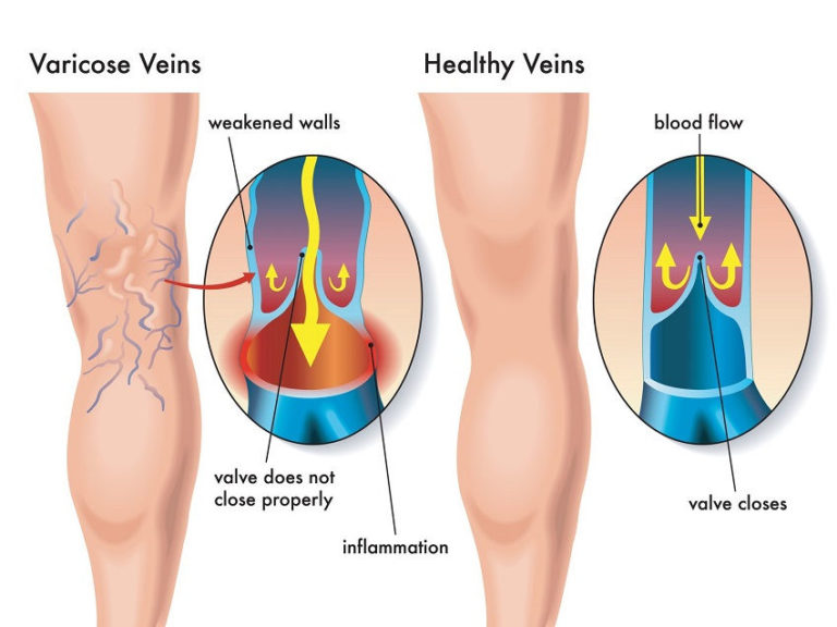 What Causes Varicose Veins and How to Prevent & Relieve Them