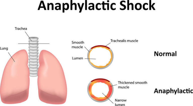 13 Anaphylactic Shock Symptoms and Things That Cause Them