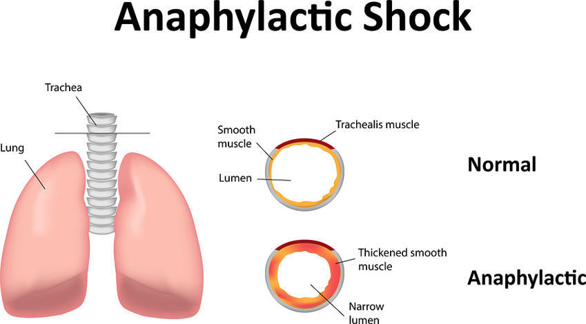 Anaphylactic Shock Symptoms How To Help