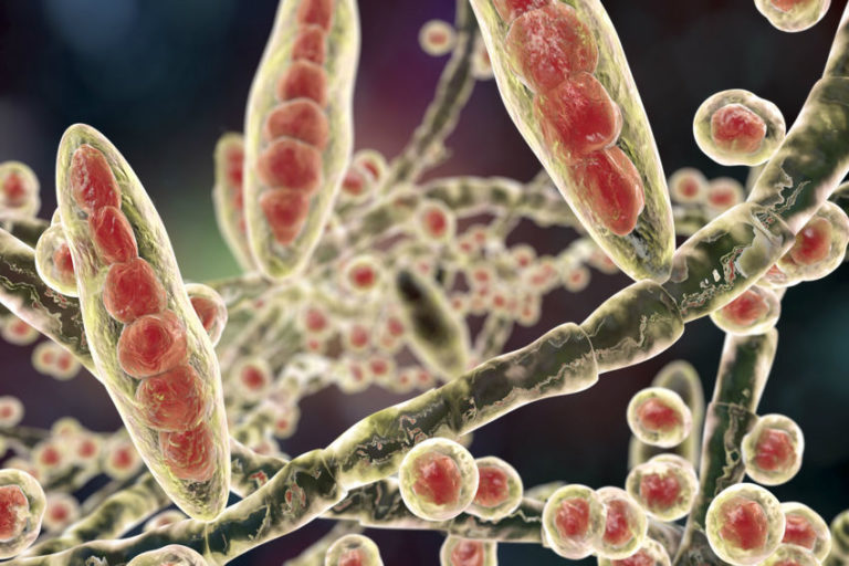 Read more about the article Fungal Rash: Types, Causes, Symptoms & Natural Treatments