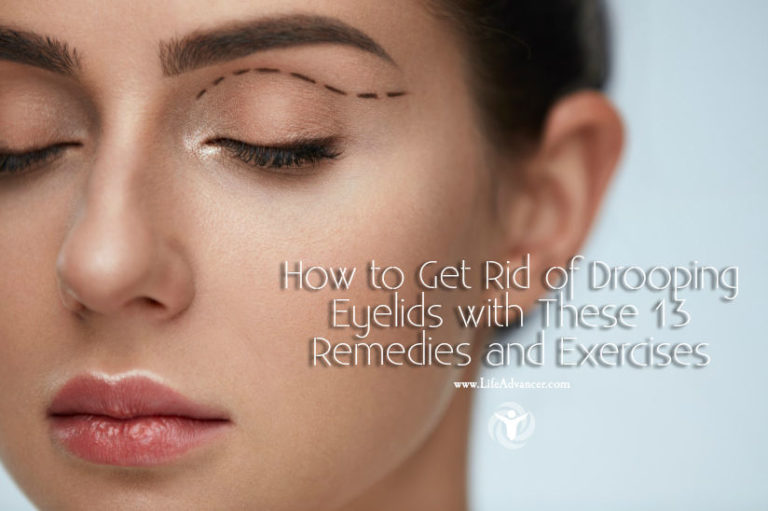How to Get Rid of Drooping Eyelids: 13 Remedies & Exercises