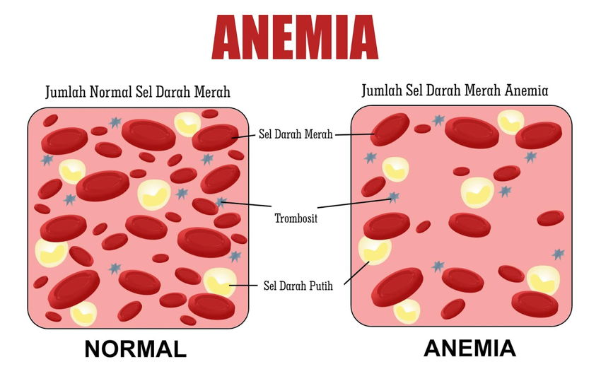 Iron Deficiency - Anemia