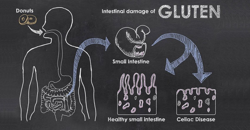 Know About Gluten Allergy