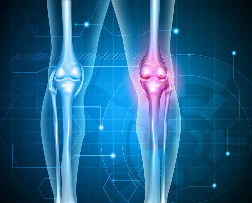 General knee pain can also build from