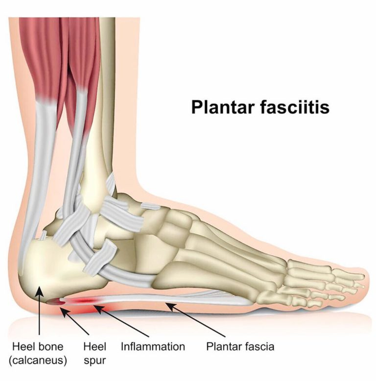 Plantar Fasciitis Pain: the Causes and How to Relieve It